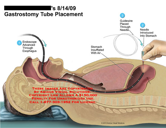 Pics Photos - Gastrostomy Tube G Tube Placement